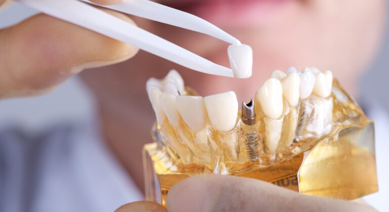 what is involved in a dental implant procedure