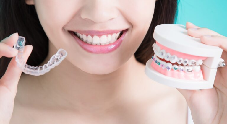 drinking with invisalign or braces what you should know